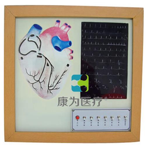 """""""康为医疗""""心脏传导系电动模型"""