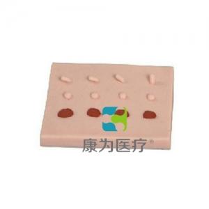 """""""康为医疗""""表皮常见病变处理训练模块,表皮常见病变处理模块--标准型(4个一包)加大型"""
