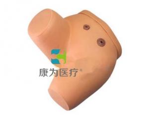 """""""康为医疗""""高级瘘管造口术护理万博app最新版"""