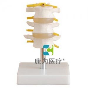 """betvlctor26伟德医疗""正常腰椎组合 (三节)"