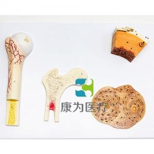 """""""康为医疗""""骨的构造万博app最新版"""