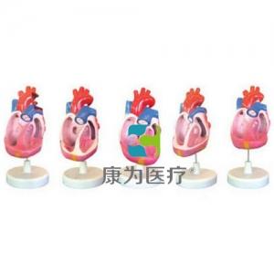 """""""康为医疗""""先天性心脏畸形万博app最新版(5部件)"""