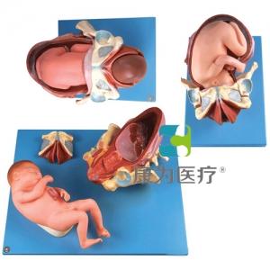 """""""康为医疗""""足月胎儿分娩过程万博app最新版"""