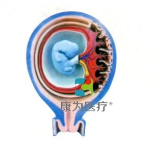 """""""康为医疗""""胎儿胎膜与子宫关系万博app最新版"""