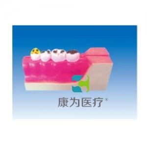 """""""康为医疗""""右下后牙解剖和根龋齿模型(放大)"""