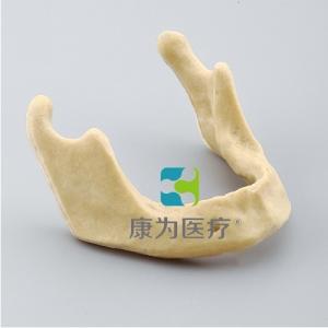 """""""康为医疗""""下颌骨种植万博app最新版"""