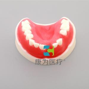 """""""康为医疗""""牙周练习万博app最新版(带骨膜)"""