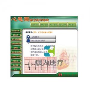 """betvlctor26伟德医疗""新版心电图教学软件---【心电图临床实例解读】"