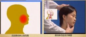 """""""康为医疗""""成人指压止血万博app最新版"""