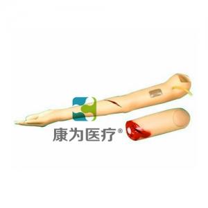 """""""康为医疗""""控制出血手臂万博app最新版"""
