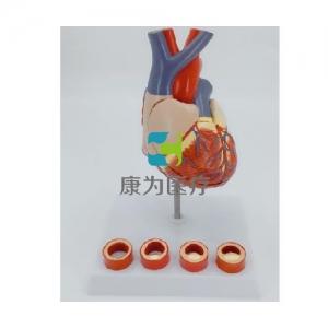 """""""康为医疗""""病态血管心脏演示万博app最新版"""
