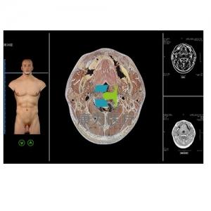 """""""康为医疗""""断层解剖与断层影像虚拟教学系统"""