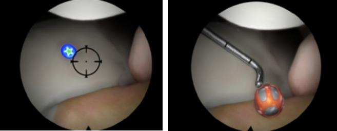 关节镜虚拟手术模拟训练系统.jpg